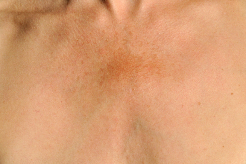 Skin discoloration, what causes it?