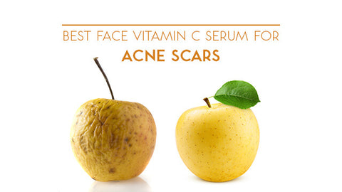 Best Face Serum for Acne