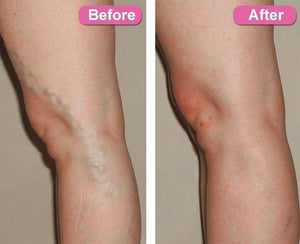 Varicose Vein Ginger Oil