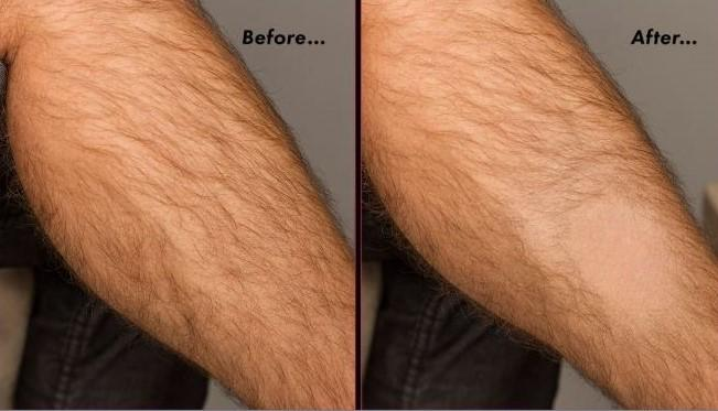 No-shave Hair Removing Pad