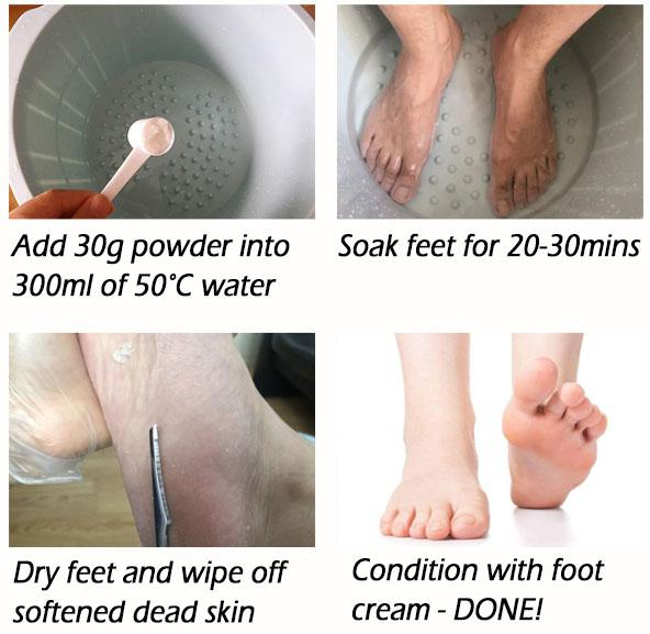 SOak Soft Foot Kit