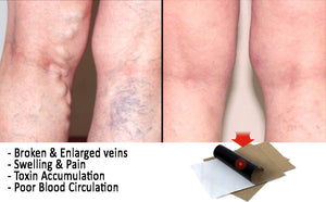 Vein Herbal Patches