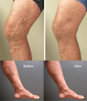 Professional Varicose Veins Treatment Cream