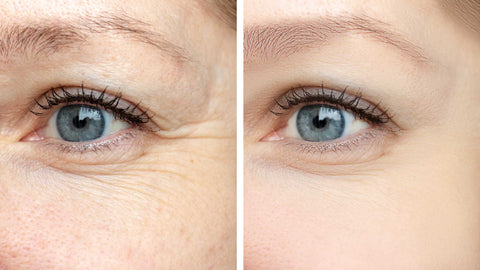 why your eyes wrinkle
