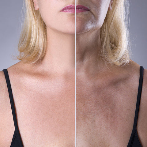 Why our neck and chest skin ages