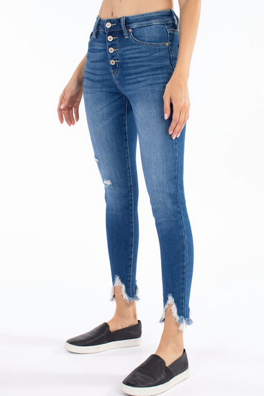 Havana Button Fly Ankle Skinny Jeans