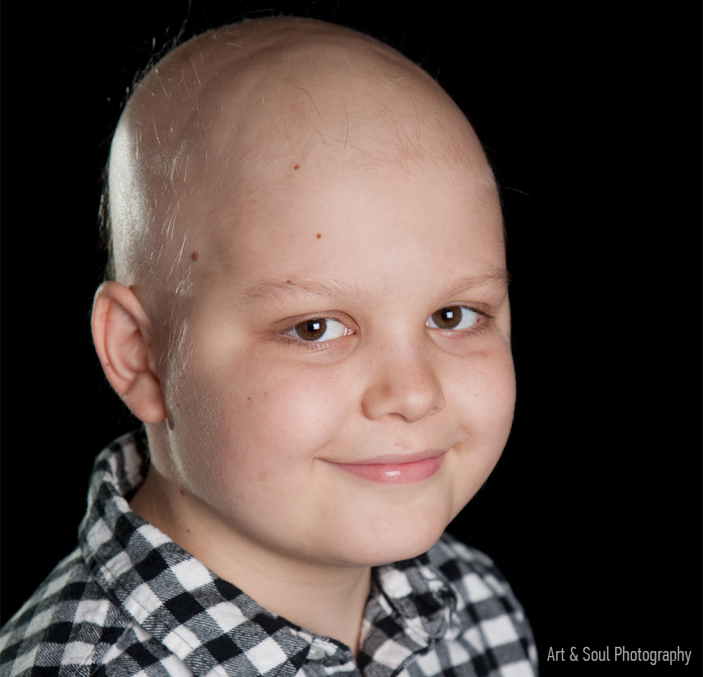 Peyton Armstrong with a bald head during his childhood cancer chemotherapy treatment