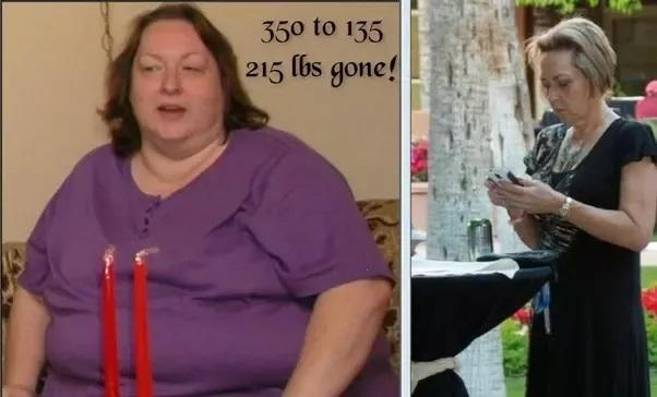 Before and After Weight Loss - Women | Men