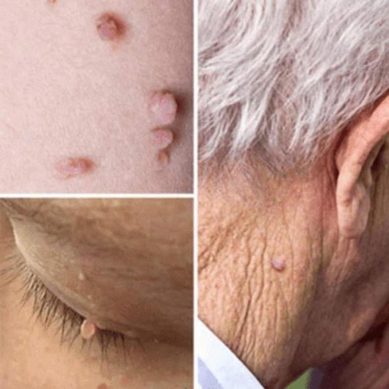 Voted #1 Best Skin Tag Removal - Just Experience