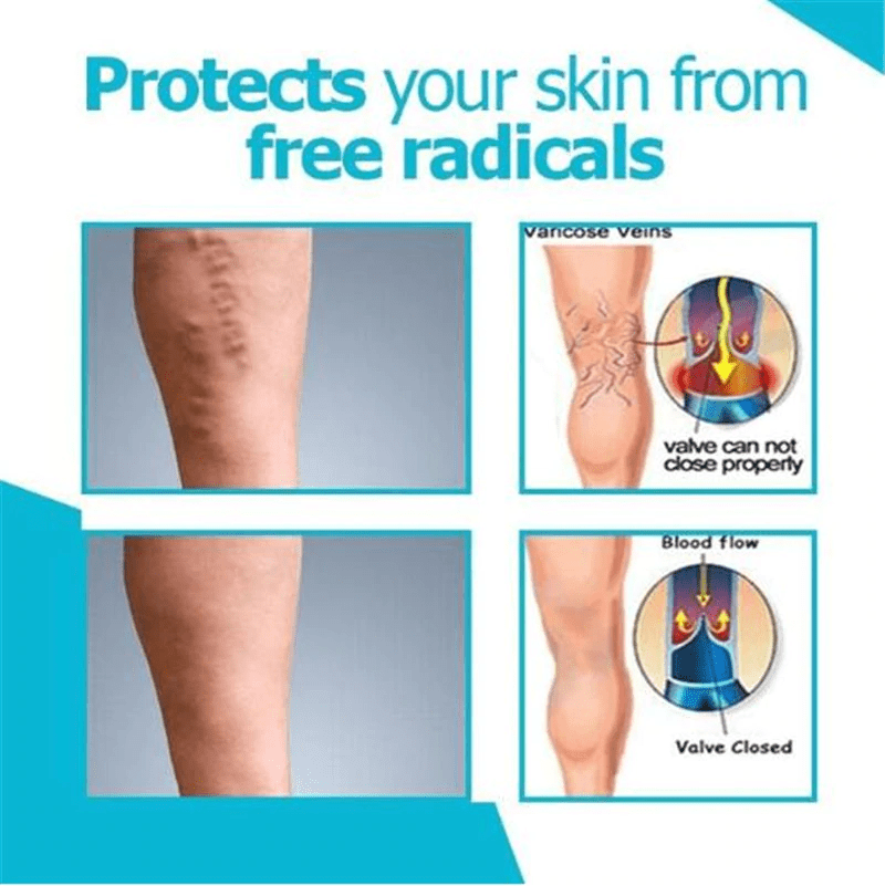 Varicose Veins Miracle Cream - Just Experience