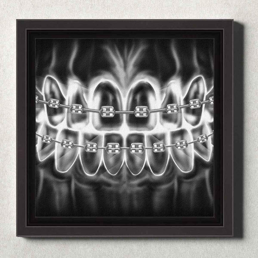 Dental Office Canvas Wall Art Framed Braces X-Ray