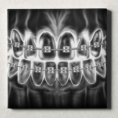 Image of Dental Office Canvas Wall Art Gallery Wrapped Braces X-Ray