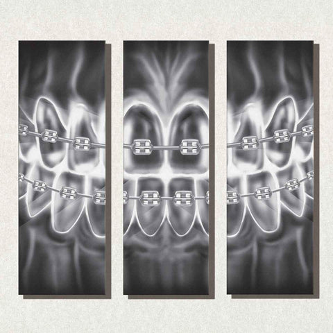 Image of Dental Office Canvas Panel Wall Art Gallery Wrapped Braces X-Ray