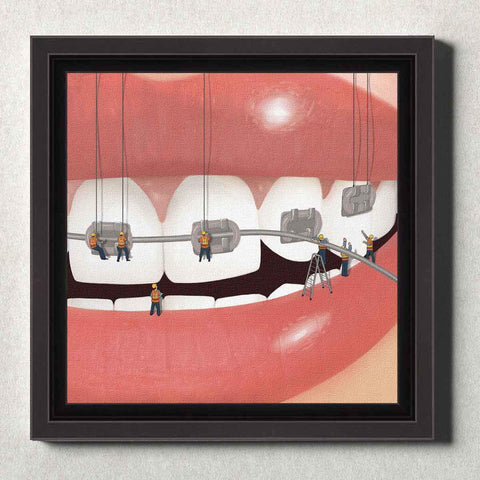 Image of Dental Office Canvas Wall Art Framed Brace Face Silver