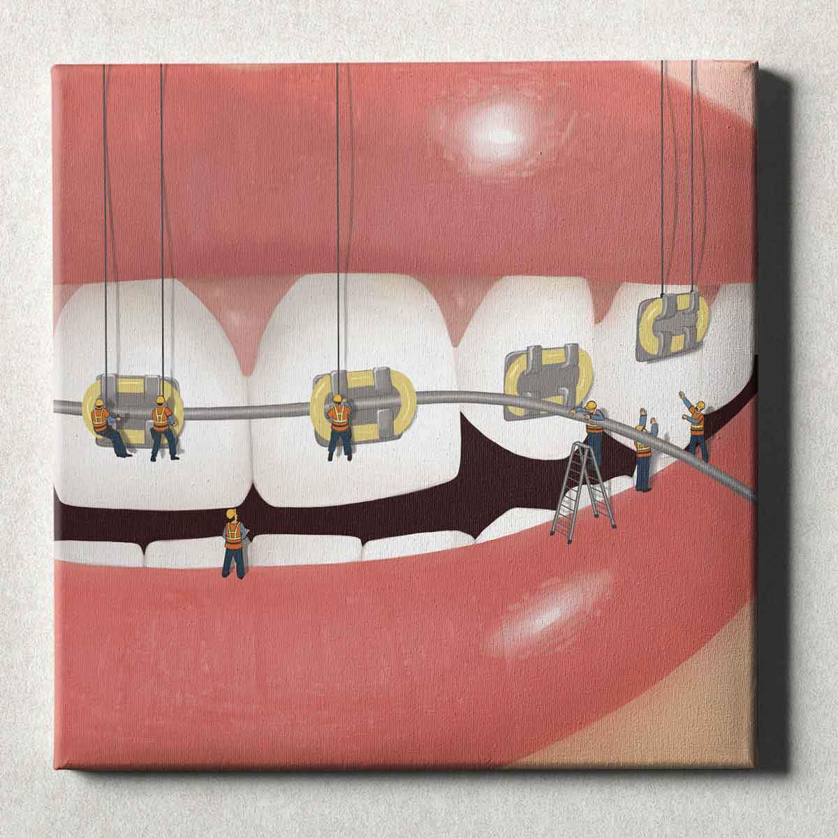 Dental Office Canvas Wall Art Gallery Wrapped Brace Face Yellow