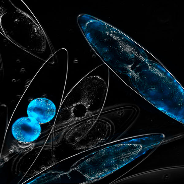 The Story behind Dinoflagellates