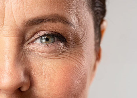 Wrinkles And Thin And Fine Lines Aging Skin