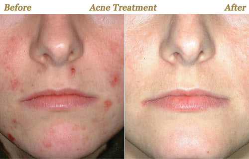 Acne cure cleared up serious pimples.