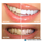 360⁰ Advanced Ultrasonic Teeth Whitening Toothbrush