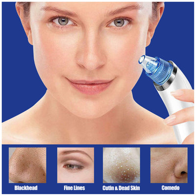 Clear Face Blackhead Remover