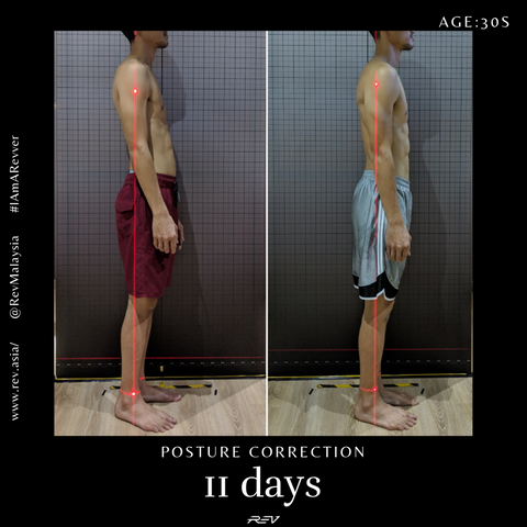 posture correction transformtion