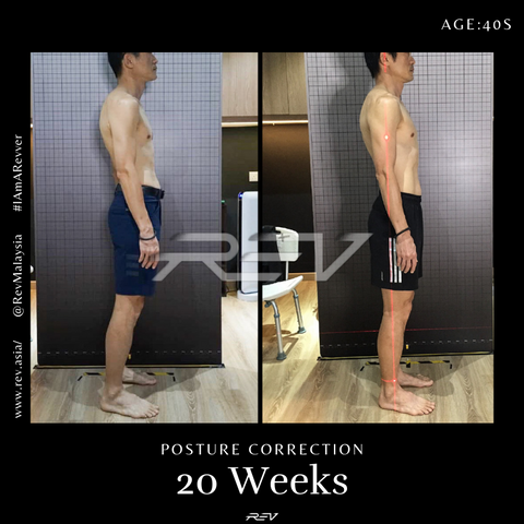 posture correction transformation