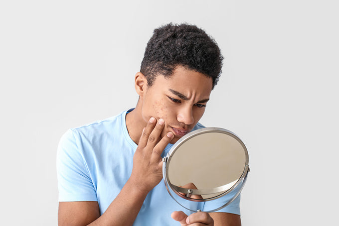 a man looking at his skin in a mirror