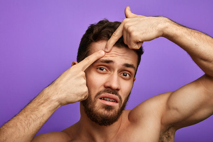 a man popping a pimple on his head
