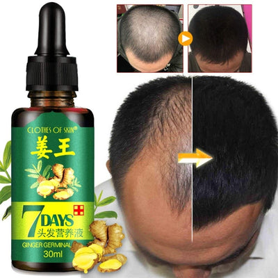Regrow 7 Day Ginger Germinal Hair Growth Serum Hairdressing Oil Loss Treatment