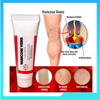 Varicose Veins Remover Cream (BUY 1 TAKE 1)