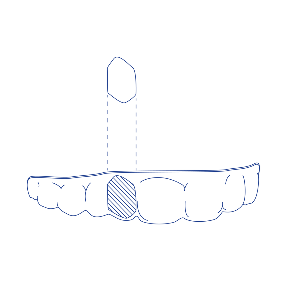 Clear Retainer with Digital Pontic Tooth