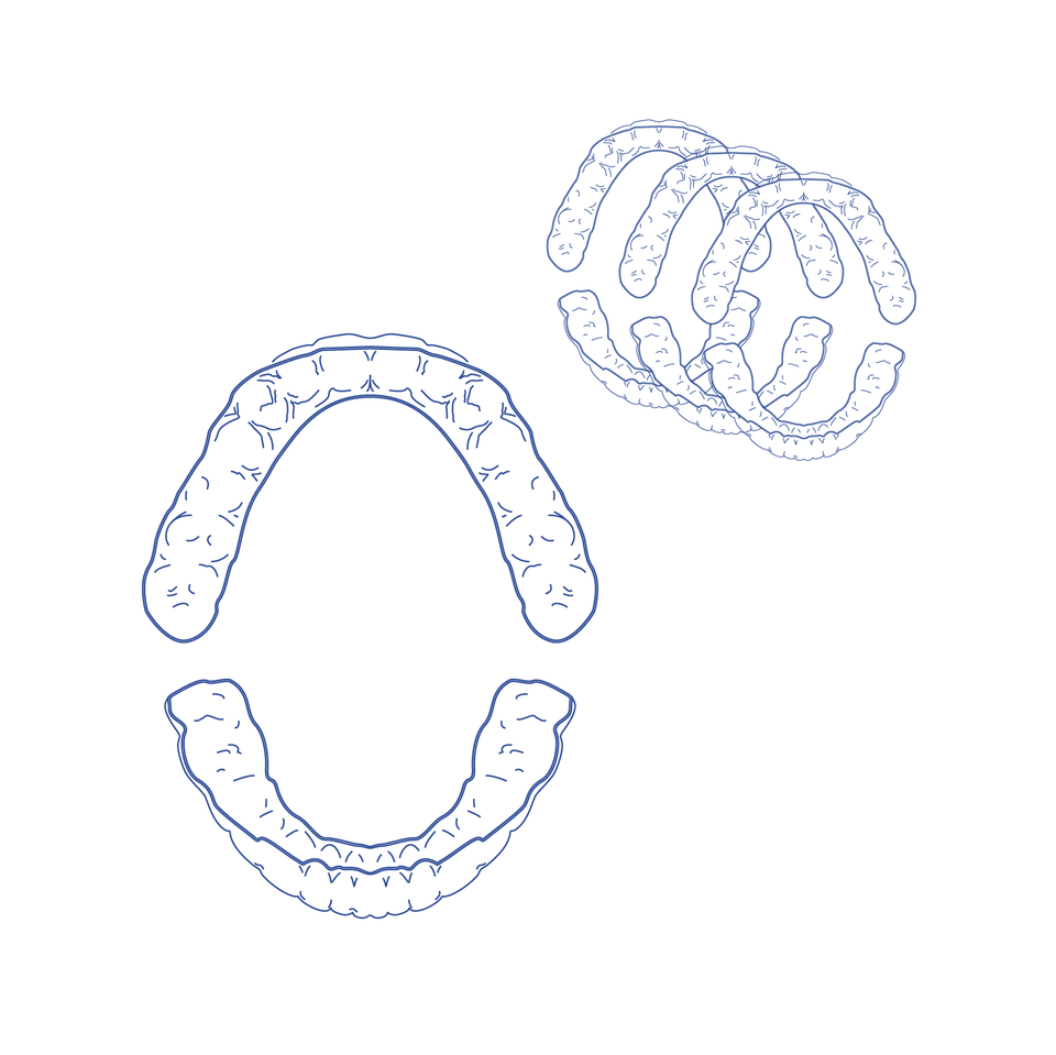 Clear Aligners - Refinement