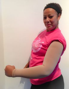 BrightLife Direct Komen Armsleeve Program for Lymphedema