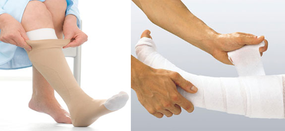 ulcer care stocking and bandaging