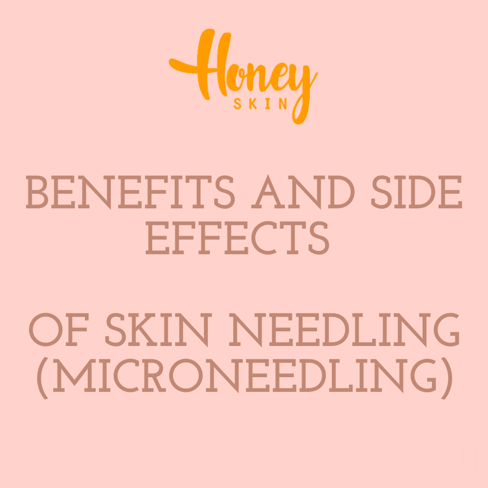 Benefits And Side Effects Of Skin Needling (Microneedling)