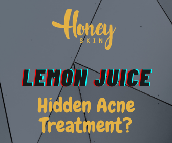 Lemon For Acne: Can Lemon And Lemon Juice Treat Acne? | The TRUTH