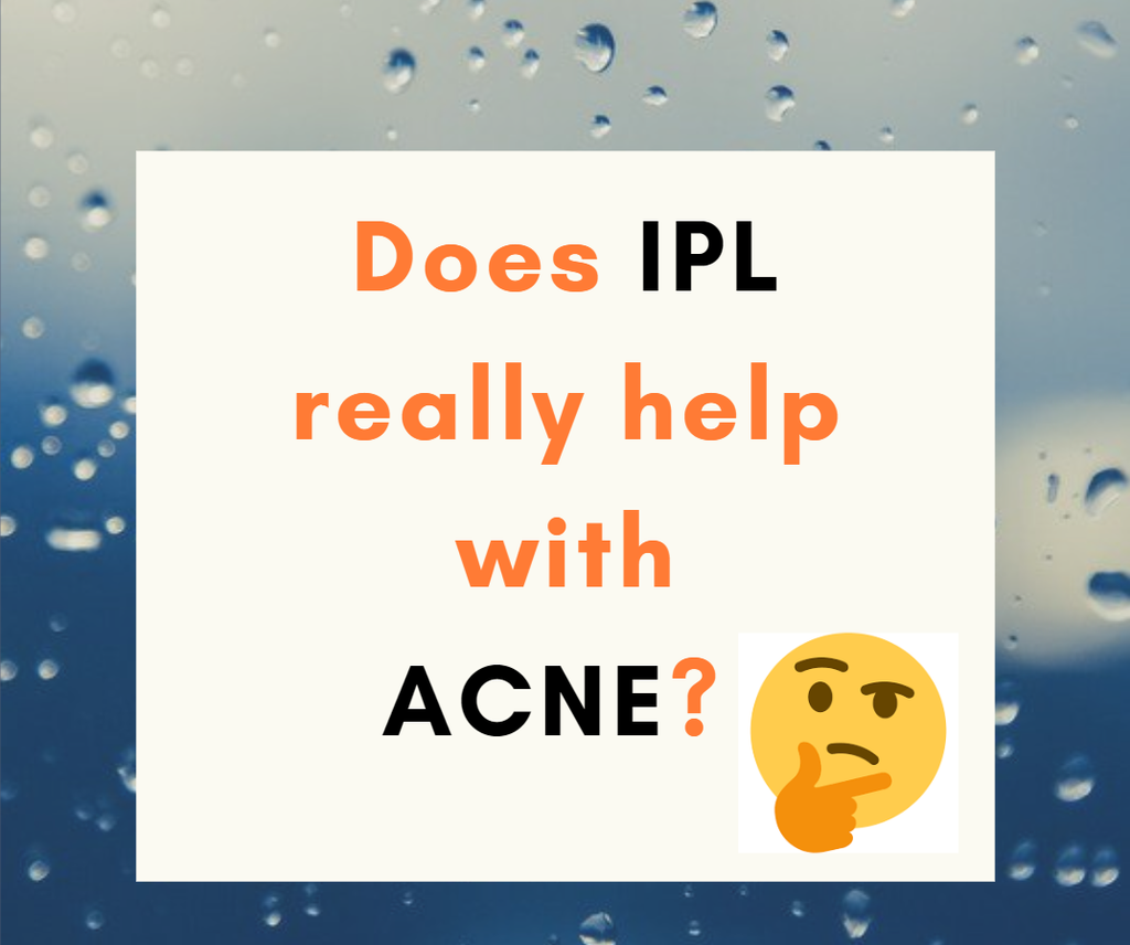 Does IPL help with Acne