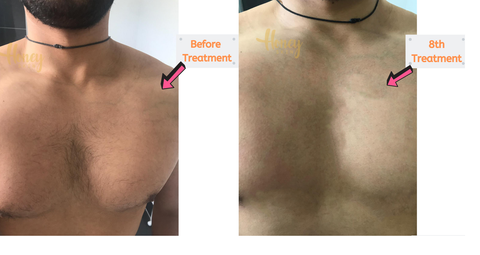At Home IPL Laser before and after results