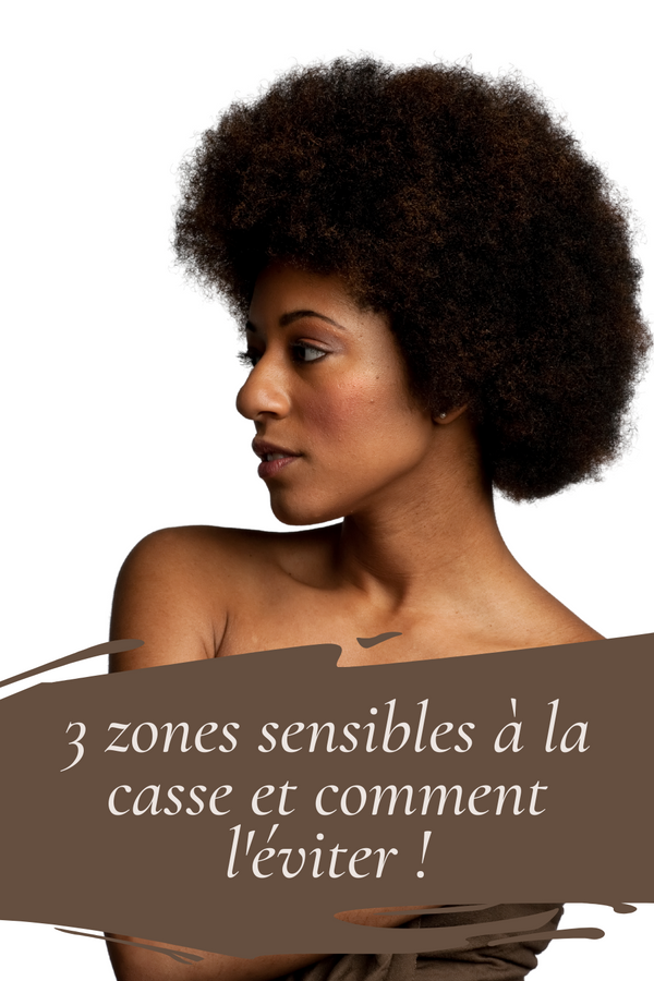 3 common areas of hair loss and how to avoid it