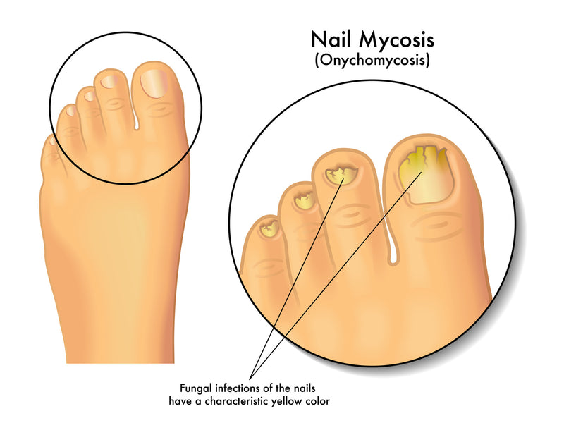 5 Ways To Prevent Yourself From Getting Toenail Fungus