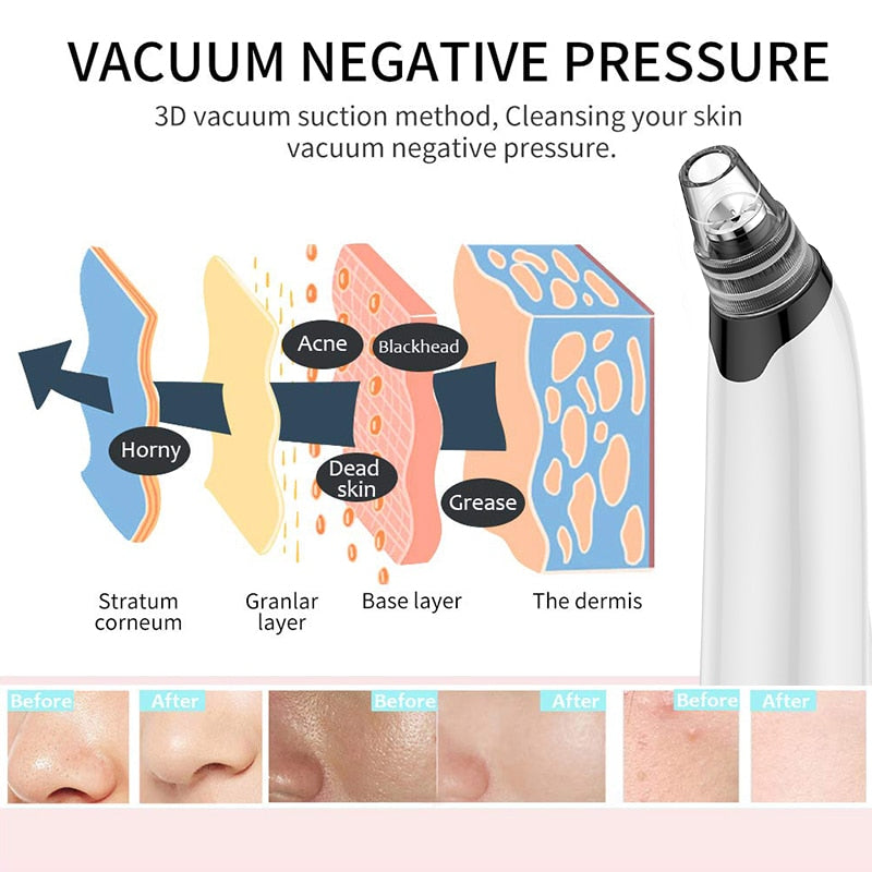hq2oXJalA5fEoamnby Face Deep Pore Cleaner Blackhead Remover Vacuum Suction