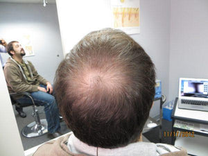 Andrew Berkovich's Disappearing Bald Spot