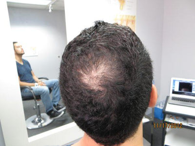 Francisco Saw Hair Regrowth in Only 2-Months!*