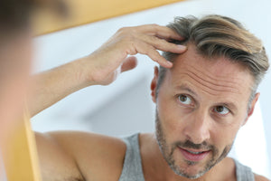 Hair Loss in Men: What You Need to Know