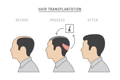 Read This Before Having Hair Transplant Surgery