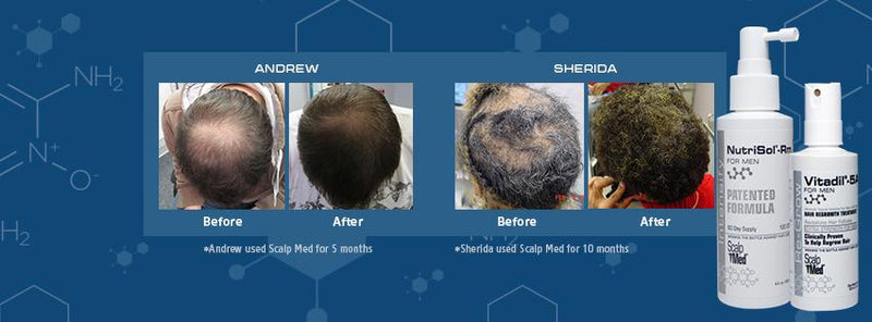 Scalp Med: Before & After Photos