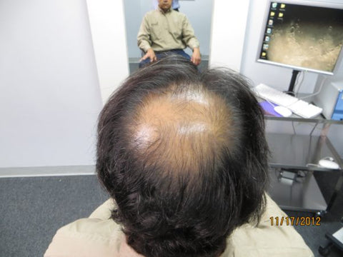 Men's Hair Regrowth Results AE1
