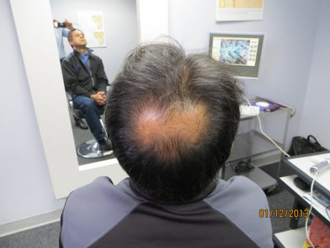 Men's Hair Regrowth Results AE2