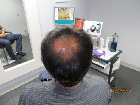 Men's Hair Regrowth Results AE4