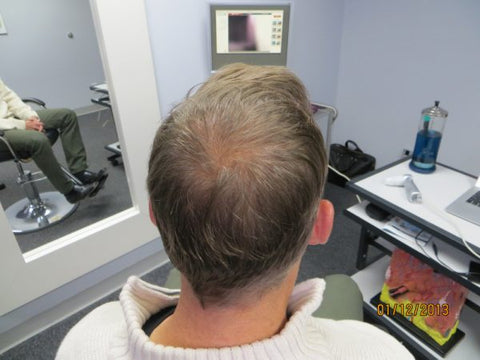 Men's Hair Regrowth Results CE2